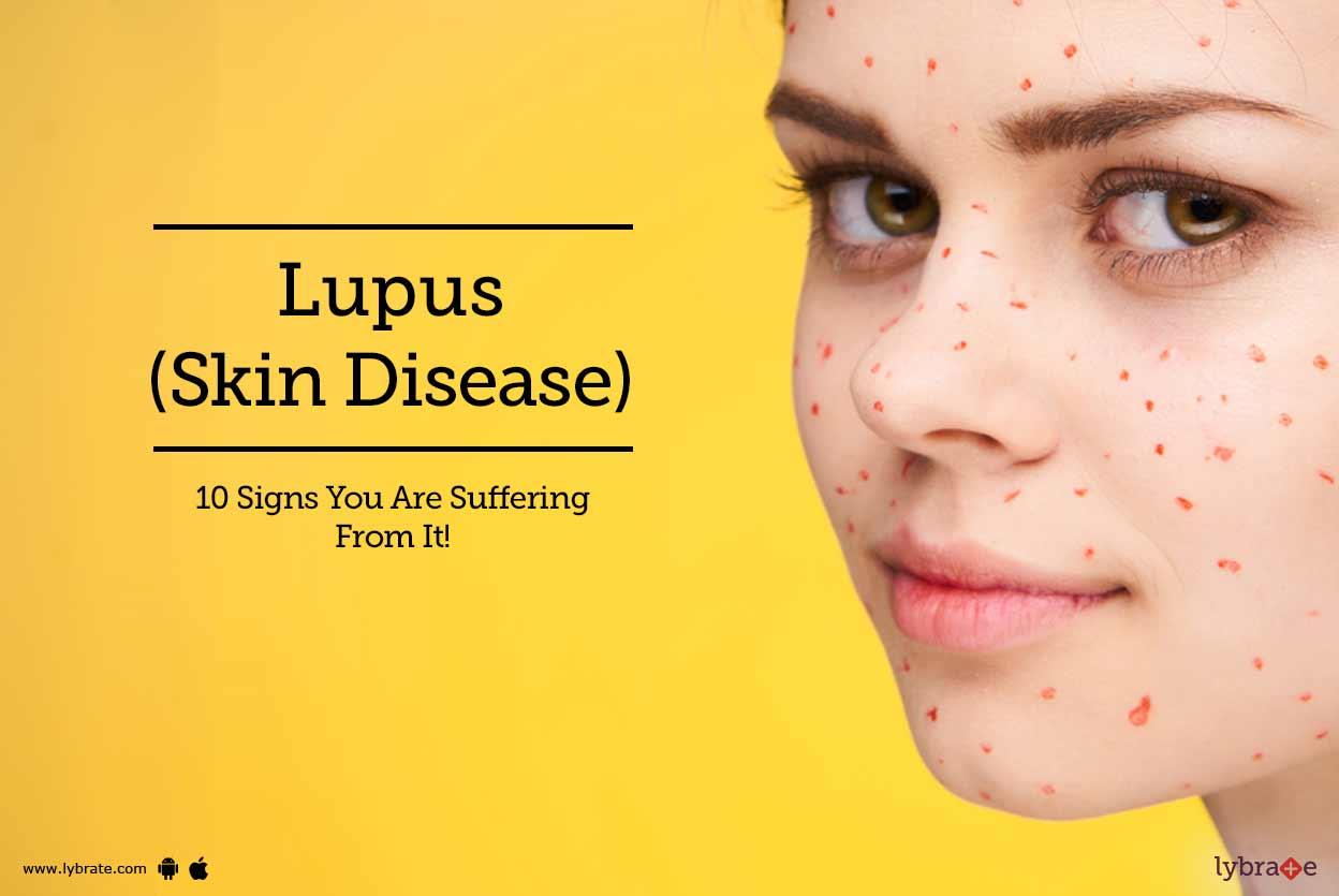 Lupus/sle Treatment in Mumbai
